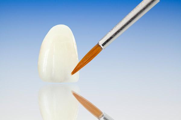 Protesi Dentali   Continolo & Partners